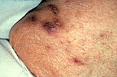 Boils on Patient's Thigh