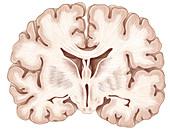 Brain,Coronal Section