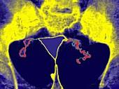 Endometriosis,X-ray