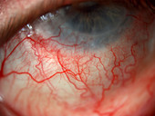 Abnormal Conjunctival Vessels