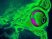 Retinal Detachment,MRI