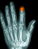 Finger Amputation,X-ray