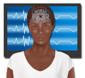 Biofeedback Therapy,Illustration