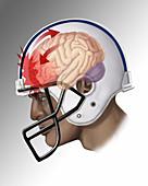 Concussion,Illustration