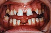 Abnormal teeth spacing