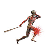 Baseball Swing,Knee Injury,illustration