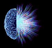 Brain explosion,illustration