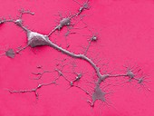 Stem cell-derived neuron,SEM