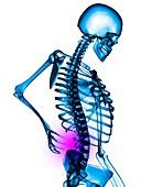 Back pain,illustration