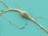 Stem cell-derived neuron,SEM