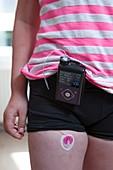 Insulin pump use in diabetes