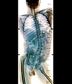 Spinal deviation in polio,X-ray