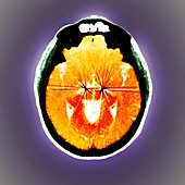 Parkinson's brain pacemaker,CT scan
