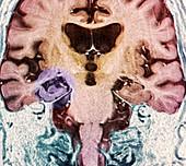 Brain in Alzheimer's disease,MRI