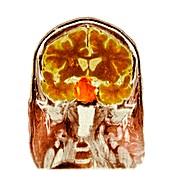 Pituitary tumour,CT scan