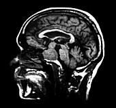 Large Pituitary Adenoma