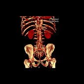 3D CTA of Abdominal Aorta
