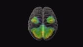 Brain atrophy, MRI SPECT scan