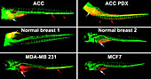 Vascular invasion by cancer cells