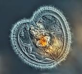 Rotifer, light micrograph