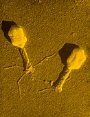 False-col TEM of T4 bacteriophage infecting E.coli