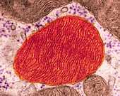 Mitochondrion from a heart muscle cell, TEM
