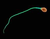Human sperm, SEM