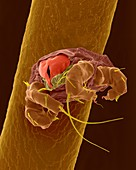 Mite on human hair, SEM