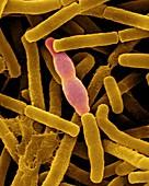 Bacillus anthracis, SEM