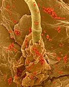Staphylococcus aureus on human skin, SEM