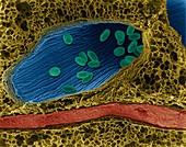 Bacillus anthracis spores in lung, SEM