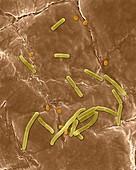Bacillus anthracis, spore, prokaryote, SEM
