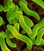 Desulfovibrio vulgaris, SEM