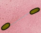 E. coli conjugation, TEM