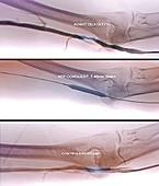 Treatment for blocked brachial vein, X-ray