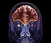 Optic nerve multiple sclerosis symptom, MRI scan