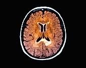 Multiple sclerosis, MRI scan