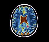 Lyme encephalopathy, MRI scan