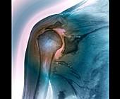Shoulder tendon disorder, MRI scan