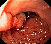 Familial adenomatous polyposis, duodenum, endoscope view