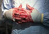 Bloodied surgeon
