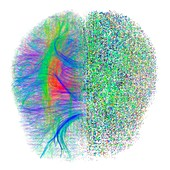 Brain white matter fibres dissolving