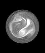 North polar vortex, satellite image