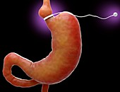 Gastric band, illustration
