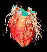 Human heart, 3D CT scan