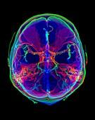 Intracranial blood vessels, 3D CT scan