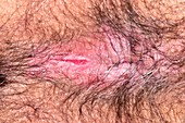 Fissure in perianal dermatitis