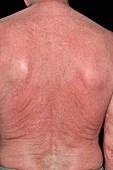 Rash on back after cancer treatment