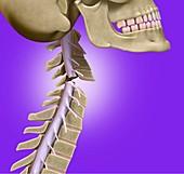Broken neck, illustration
