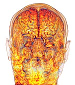 Human head and brain, 3D MRI scan